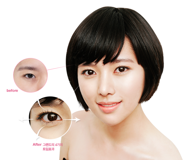 Eye Plastic Surgery in Korea | Get the Life Changing Korean Plastic