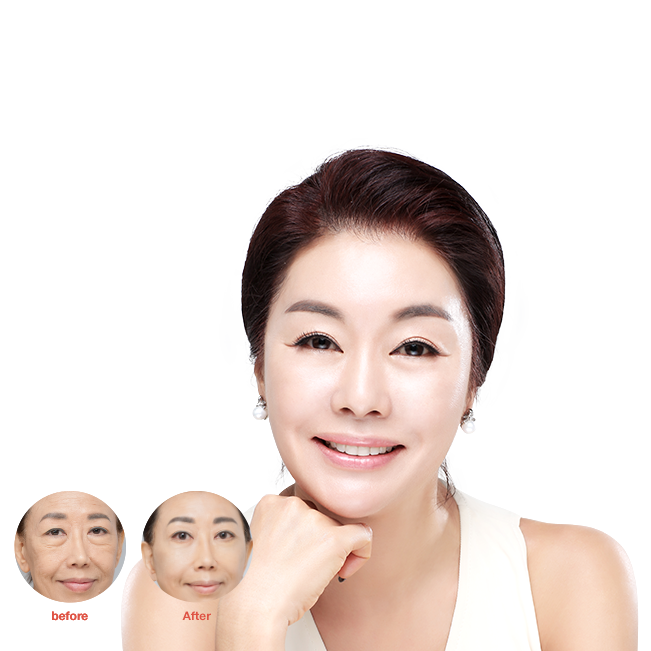 Face rejuvenation in South Korea | Get the Life Changing