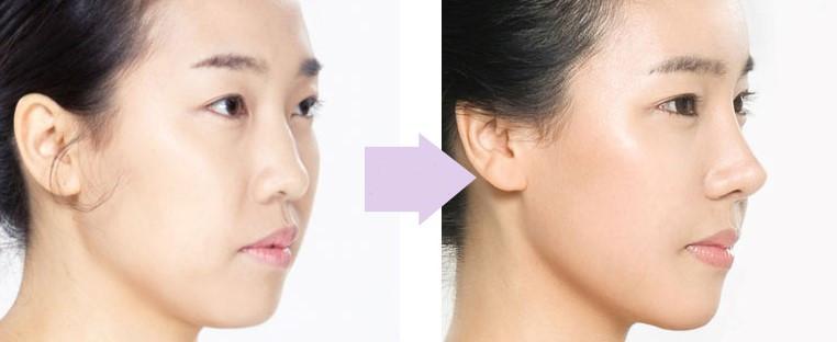 Hasil gambar untuk rhinoplasty korea